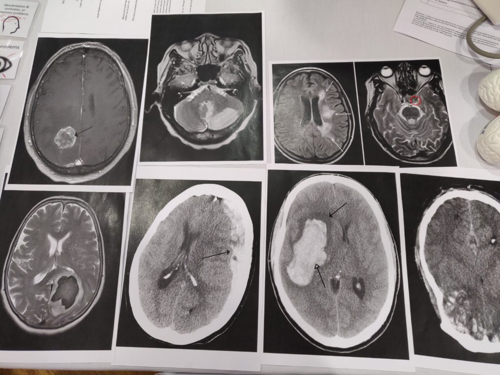 various ct scans of brains showing various types of stroke